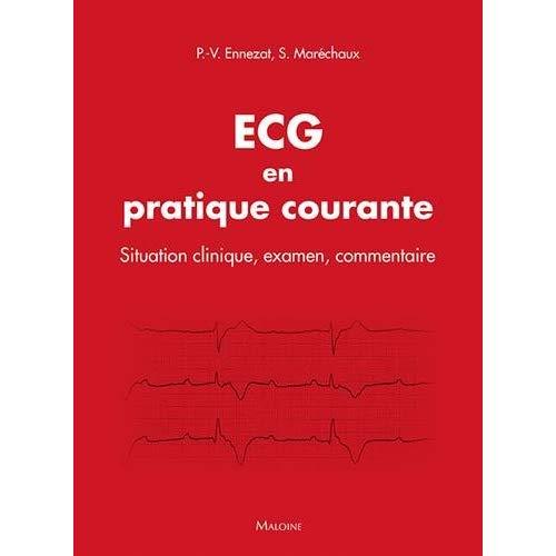 ECG EN PRATIQUE COURANTE - SITUATION CLINIQUE, INTERPRETATION, DECISION