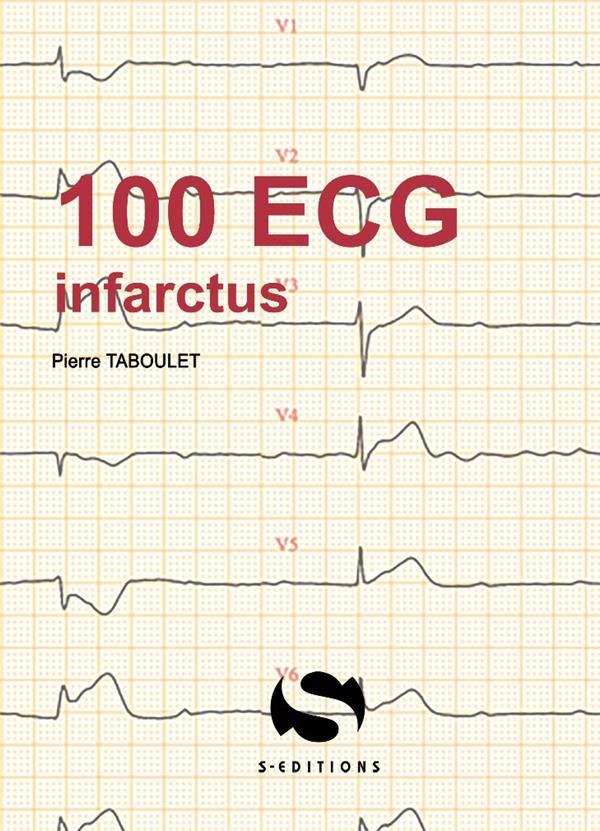 100 ECG AUTOUR DE L'INFARCTUS