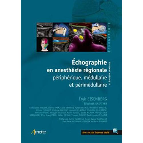 ECHOGRAPHIE EN ANESTHESIE REGIONALE  3E EDITION - PERIPHERIQUE MEDULLAIRE ET PERIMEDULLAIRE