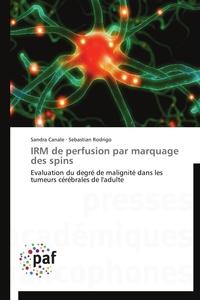 IRM DE PERFUSION PAR MARQUAGE DES SPINS