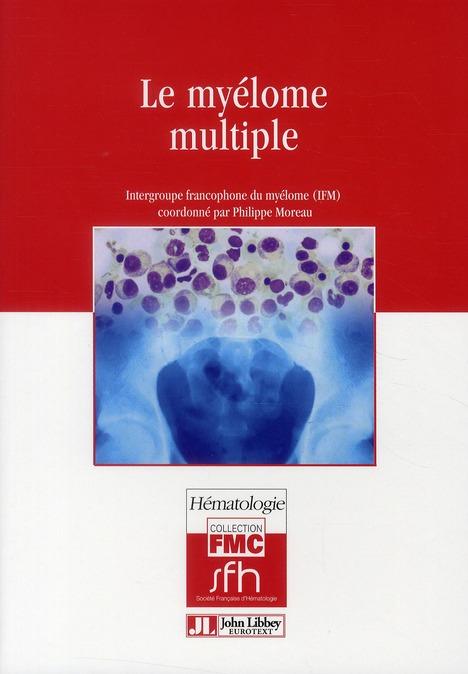 LE MYELOME MULTIPLE - INTERGROUPE FRANCOPHONE DU MYELOME (IFM).