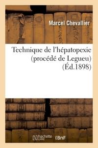TECHNIQUE DE L'HEPATOPEXIE PROCEDE DE LEGUEU
