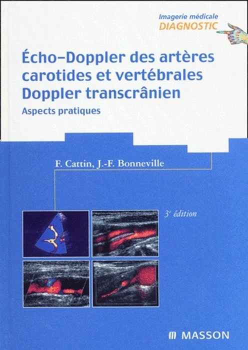 ECHO-DOPPLER DES ARTERES CAROTIDES ET VERTEBRALES ET DOPPLER TRANSCRANIEN 3ED