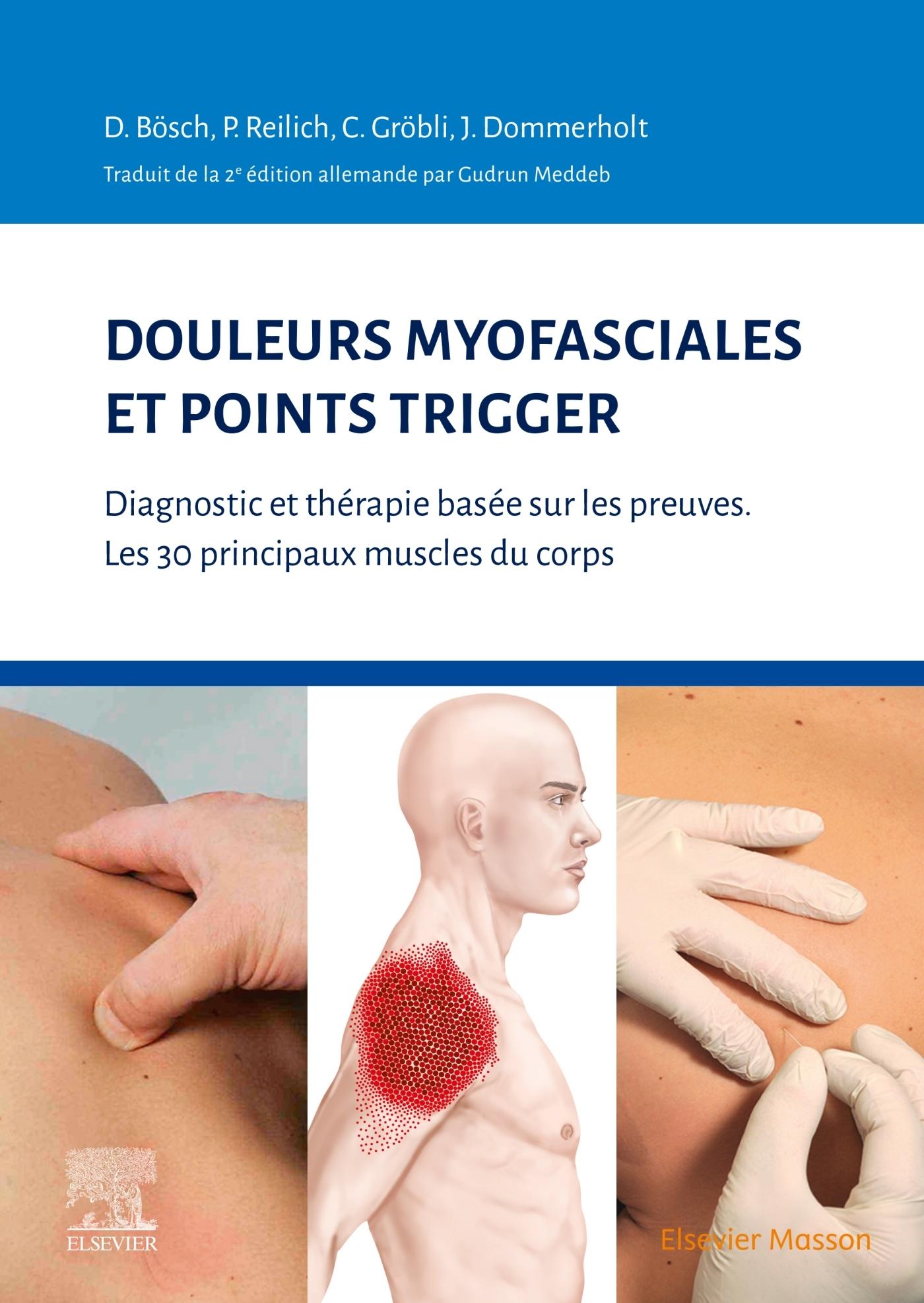 DOULEURS MYOFASCIALES ET POINTS TRIGGER - DIAGNOSTIC ET THERAPIE BASEE SUR LES PREUVES. LES 30 PRINC