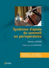 SYNDROME D'APNEE DU SOMMEIL EN ANESTHESIE